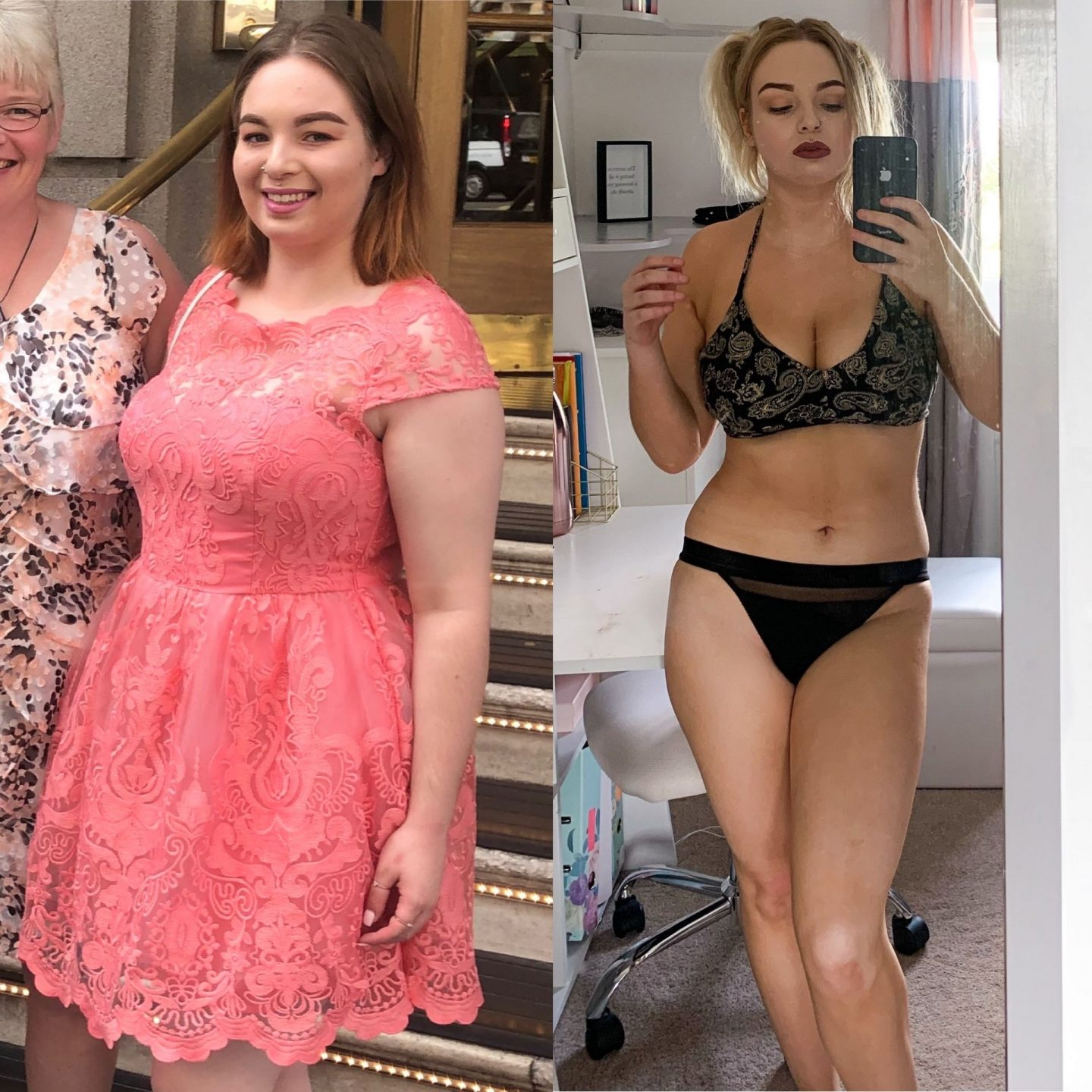 PCOS weight loss journey transformation picture